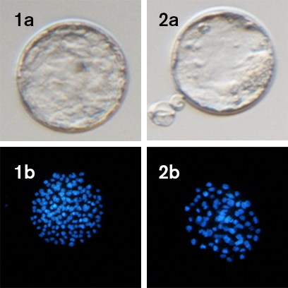 Blastocyst_development_MEA.png