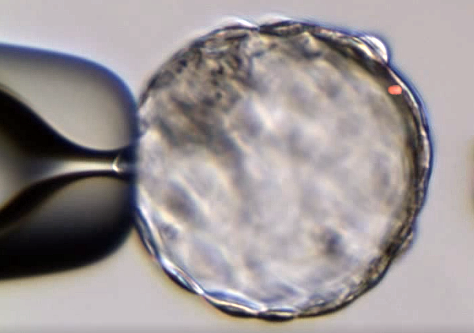 Laser collapsing blastocyst.png